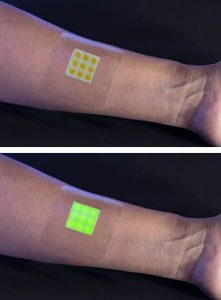 before-and-after-smart-bandage-detects-infection
